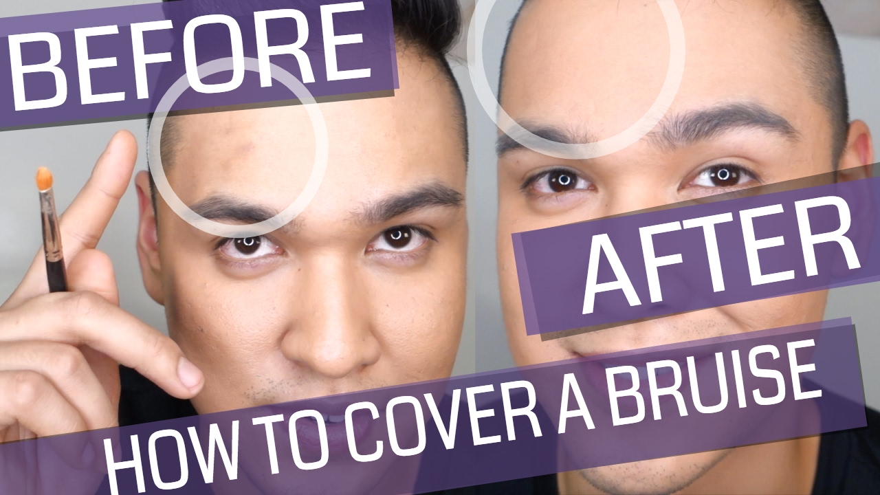 How To Cover & An Dramatic Black Eye With Makeup?
